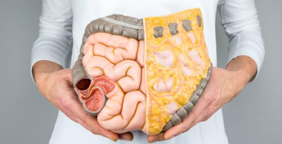 Colitis ulcerosa con que se cura