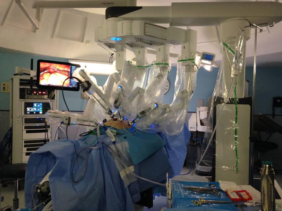 cirugia robot de próstata da vinci
