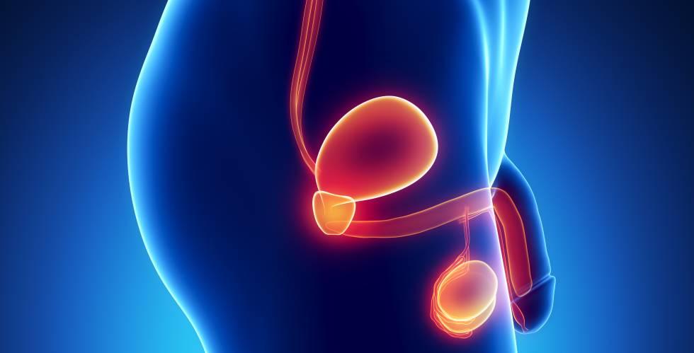 el cáncer de próstata se cura